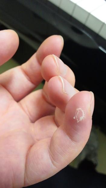 の 皮 が むける 指先