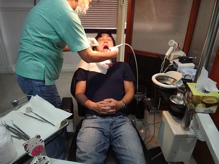 歯垢の掃除