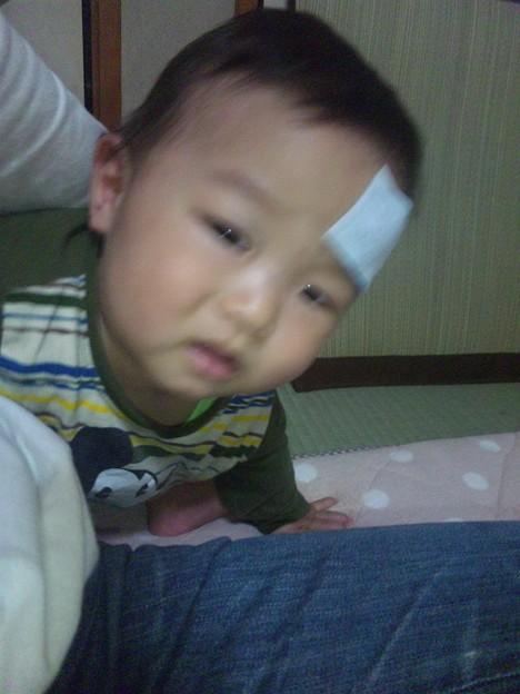 おでこ た 赤ちゃん ぶつけ 【医師監修】赤ちゃんが頭を打った! たんこぶができた!